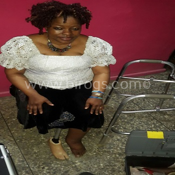 Mrs. Olayinka Martins getting a feel of her Prosthectic Leg.